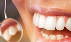 teeth whitening carstairs