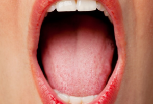 dry mouth affects on oral health